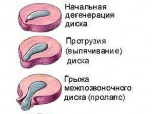 ПРОТРУЗИЯ 3-Х ДИСКОВ