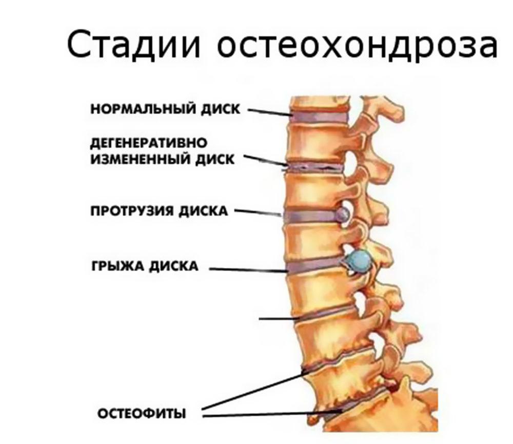 сайте что такое спинной остеохондроз позвонрчника брать руки