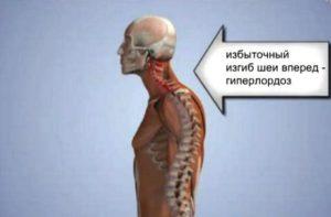 Гиперлордоз шеи